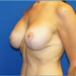 Breast Lift & Implant Before & After Patient #3445