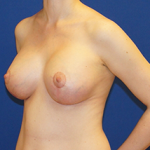 Breast Lift & Implant Before & After Patient #3450