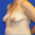 Breast Lift & Implant Before & After Patient #3455