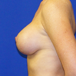 Breast Lift & Implant Before & After Patient #3460