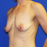 Breast Lift & Implant Before & After Patient #3465