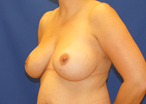 Breast Lift & Implant Before & After Patient #3470
