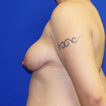 Breast Lift & Implant Before & After Patient #3475