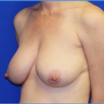 Breast Lift Before & After Patient #3480