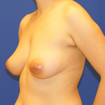 Breast Lift Before & After Patient #3485