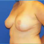 Breast Reduction Before & After Patient #3490