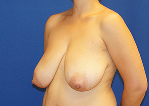 Breast Reduction Before & After Patient #3495
