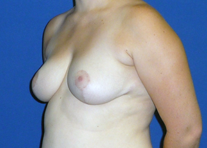 Breast Reduction Before & After Patient #3500