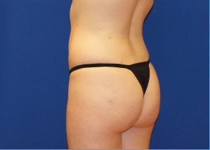 Buttock Enhancement Before & After Patient #3538