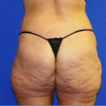 Buttock Enhancement Before & After Patient #3539