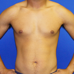 Gynecomastia Before & After Patient #3505