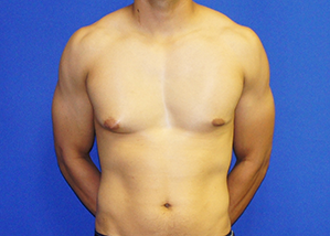 Gynecomastia Before & After Patient #3512
