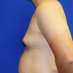Gynecomastia Before & After Patient #3519