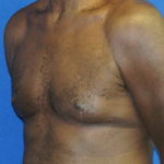 Gynecomastia Before & After Patient #3526