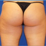 Liposuction Before & After Patient #3573