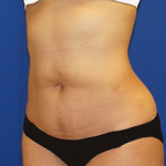 Liposuction Before & After Patient #3559