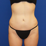 Liposuction Before & After Patient #3568