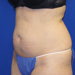 Liposuction Before & After Patient #3584