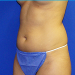 Liposuction Before & After Patient #3593