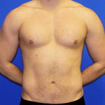 Liposuction Before & After Patient #3598