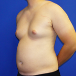 Liposuction Before & After Patient #3607