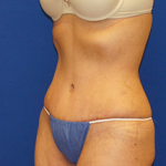 Tummy Tuck Before & After Patient #3663