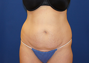 Tummy Tuck Before & After Patient #3674