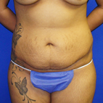Tummy Tuck Before & After Patient #3683
