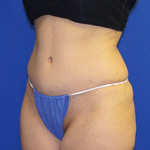 Tummy Tuck Before & After Patient #3692