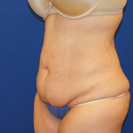 Tummy Tuck Before & After Patient #3702