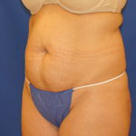 Tummy Tuck Before & After Patient #3711