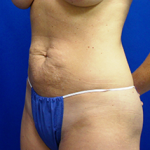 Tummy Tuck Before & After Patient #3720