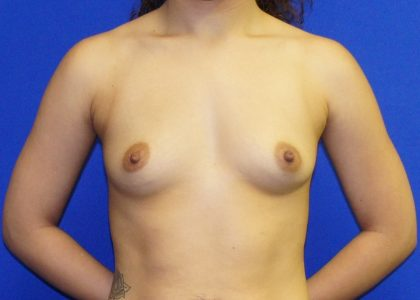 Breast Augmentation Before & After Patient #4111