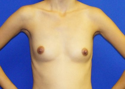 Breast Augmentation Before & After Patient #4119