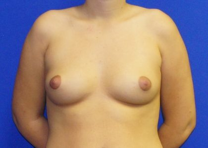 Breast Augmentation Before & After Patient #4154