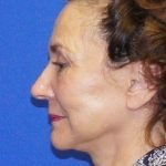 Facelift Before & After Patient #4338