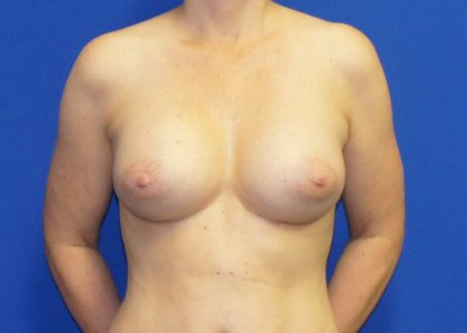 Breast Augmentation Before & After Patient #4455