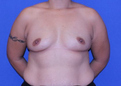 Breast Augmentation Before & After Patient #4441