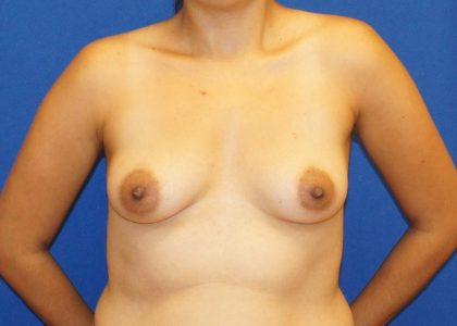 Breast Augmentation Before & After Patient #4448