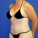 Tummy Tuck Before & After Patient #4731
