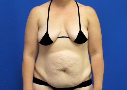 Patient 4731 Tummy Tuck Before And After Photos La Jolla