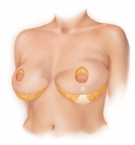 bellesoma-method-breast-lift