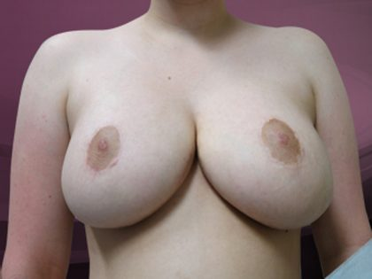 Bellesoma Breast Reduction Before & After Patient #4896