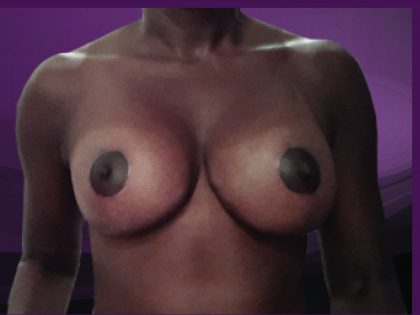 Bellesoma Breast Reduction Before & After Patient #4881