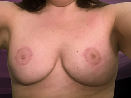 Bellesoma Breast Lift Before & After Patient #4893
