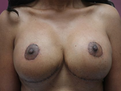 Bellesoma Breast Lift Before & After Patient #4887