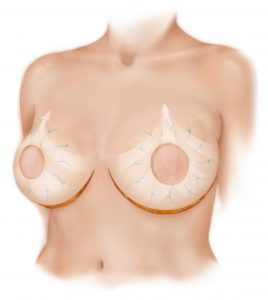bellesoma-breast-lift