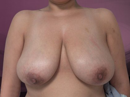 Bellesoma Breast Reduction Before & After Patient #4899