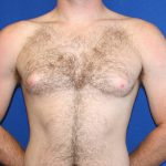 Gynecomastia Before & After Patient #5208
