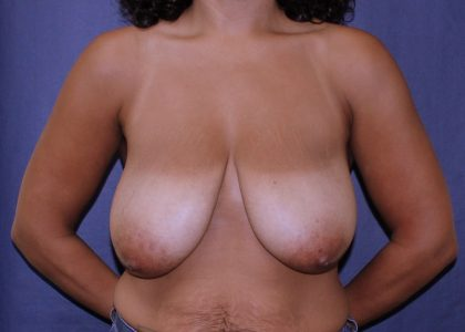 Bellesoma Breast Reduction Before & After Patient #5322
